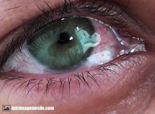 Imágenes De Ojos Llorando Imágenes